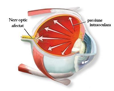 scăderea acuității vizuale în glaucom astegmatismul vederii