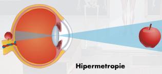 cataractă hipermetropie