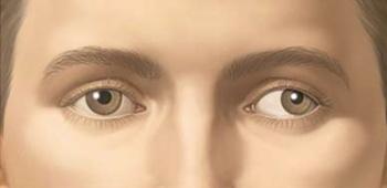 Vederea dublă la adult (diplopia) - Clinica OFTAPRO